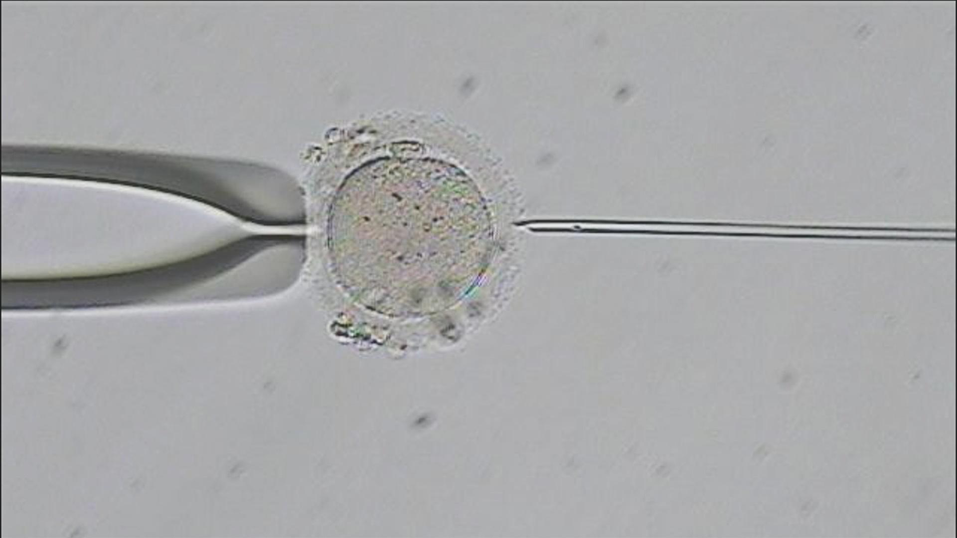 Image of in-vitro vertilization under a microscope.